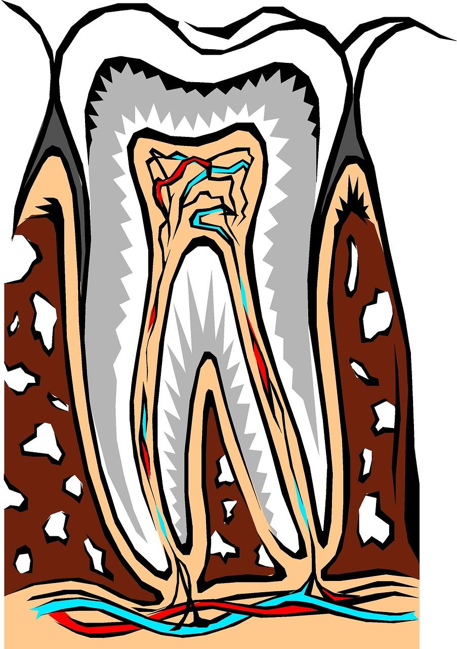 schmerzempflindlicher Zahn