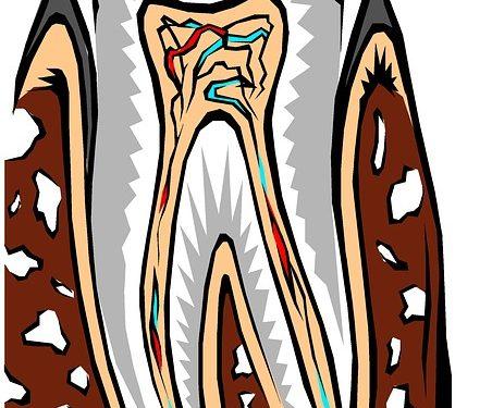 Schmerzempfindliche Zähne – woher kommt's und was hilft?