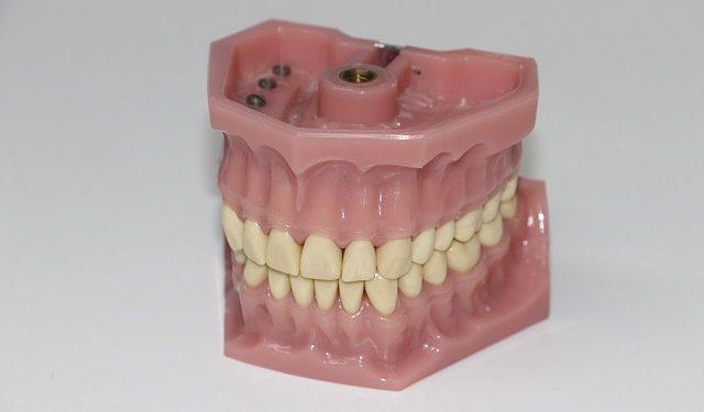 Was kann ich tun, wenndie Zahnarztrechnung unbezahlbar ist?