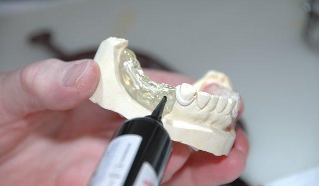 Der Zahnersatz