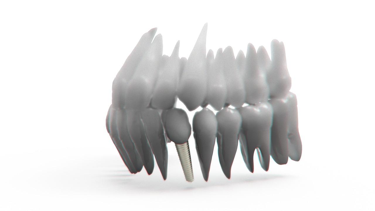 Was sind Zahnimplantate und was übernimmt die Krankenkasse?