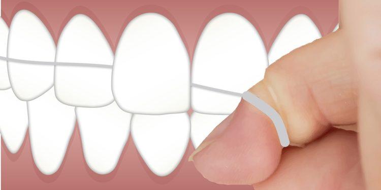 Zahnzwischenraumreinigung und Tipps zur richtigen Pflege