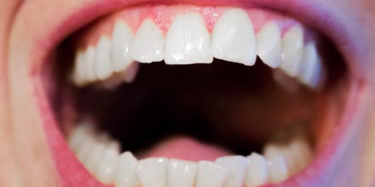 Aligner und Co. – ästhetische Zähne im Erwachsenenalter