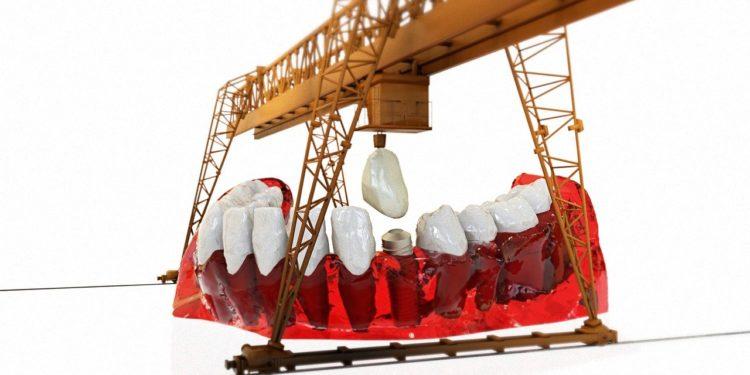 Zahnimplantate – das sollten Sie wissen