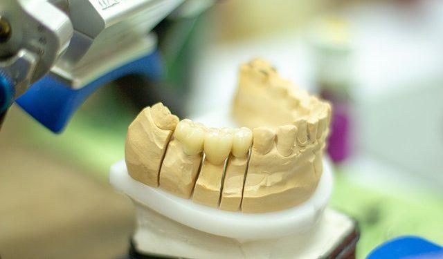 Warum qualitativ hochwertiger Zahnersatz wichtig ist