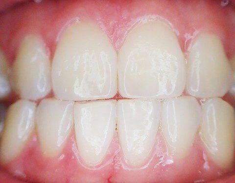 Zahnimplantate – Wissenswertes