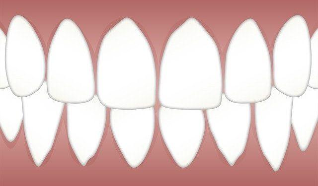 CBD für die Mund- und Zahngesundheit