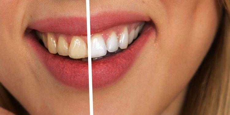 Verschiedene Arten der Zahnaufhellung