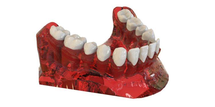 Zahnimplantate – was sind die Unterschiede?